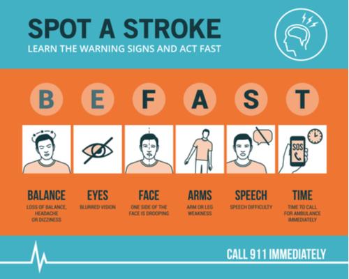 stroke diagnosed